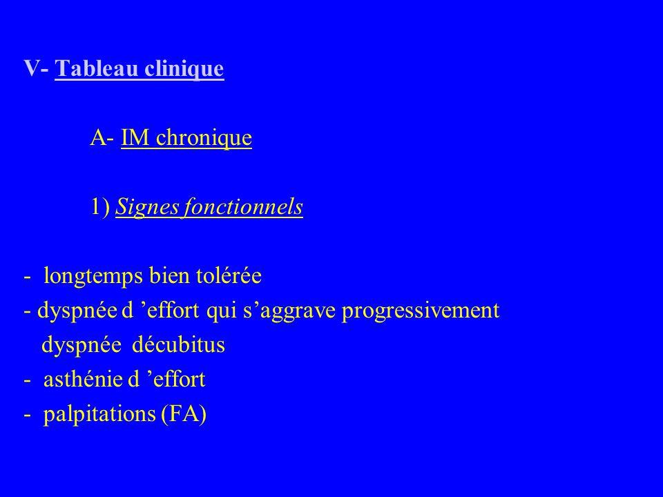 V- Tableau clinique A- IM chronique 1) Signes fonctionnels - longtemps bien tolérée - dyspnée d 'effort qui s'aggrave progressivement dyspnée décubitus - asthénie d 'effort - palpitations (FA)