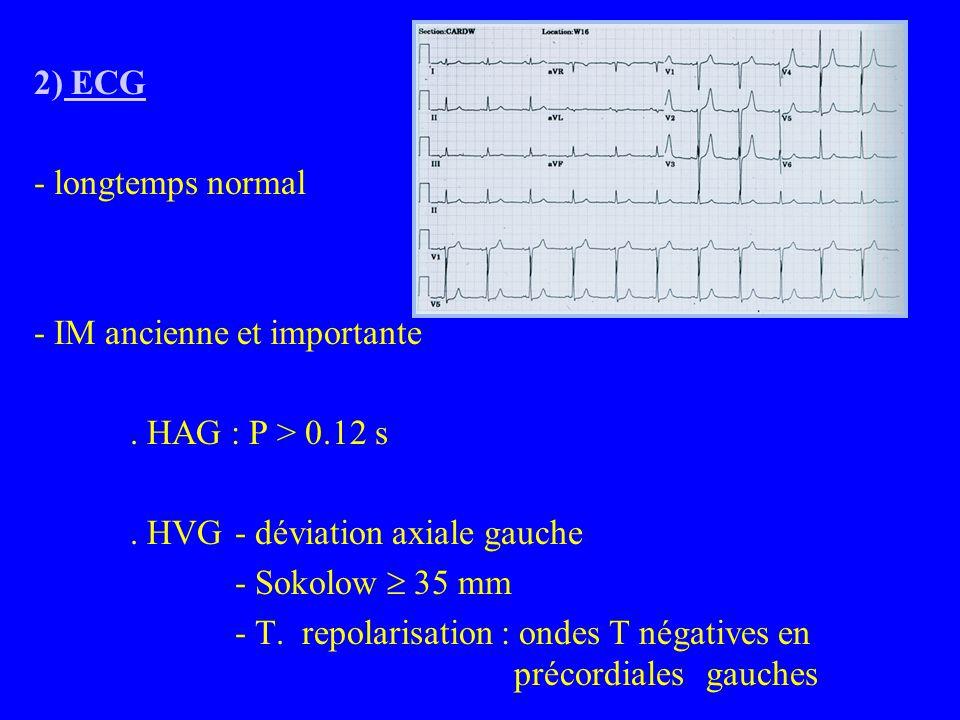 2) ECG - longtemps normal - IM ancienne et importante.
