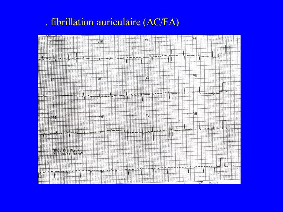 . fibrillation auriculaire (AC/FA)