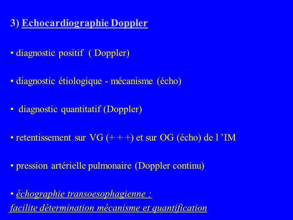 3) Echocardiographie Doppler diagnostic positif ( Doppler) diagnostic étiologique - mécanisme (écho) diagnostic quantitatif (Doppler) retentissement sur VG (+ + +) et sur OG (écho) de l 'IM pression artérielle pulmonaire (Doppler continu) échographie transoesophagienne : facilite détermination mécanisme et quantification