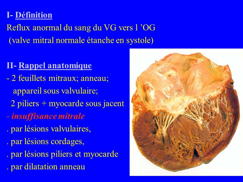 I- Définition Reflux anormal du sang du VG vers l 'OG (valve mitral normale étanche en systole) II- Rappel anatomique - 2 feuillets mitraux; anneau; appareil sous valvulaire; 2 piliers + myocarde sous jacent - insuffisance mitrale.
