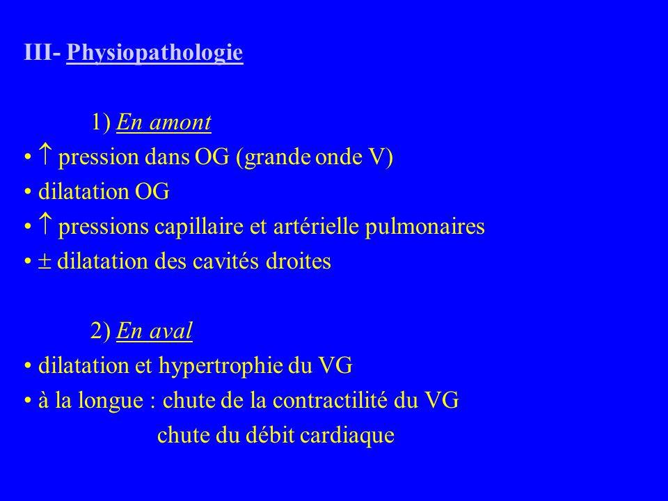 III- Physiopathologie 1) En amont  pression dans OG (grande onde V) dilatation OG  pressions capillaire et artérielle pulmonaires  dilatation des cavités droites 2) En aval dilatation et hypertrophie du VG à la longue : chute de la contractilité du VG chute du débit cardiaque