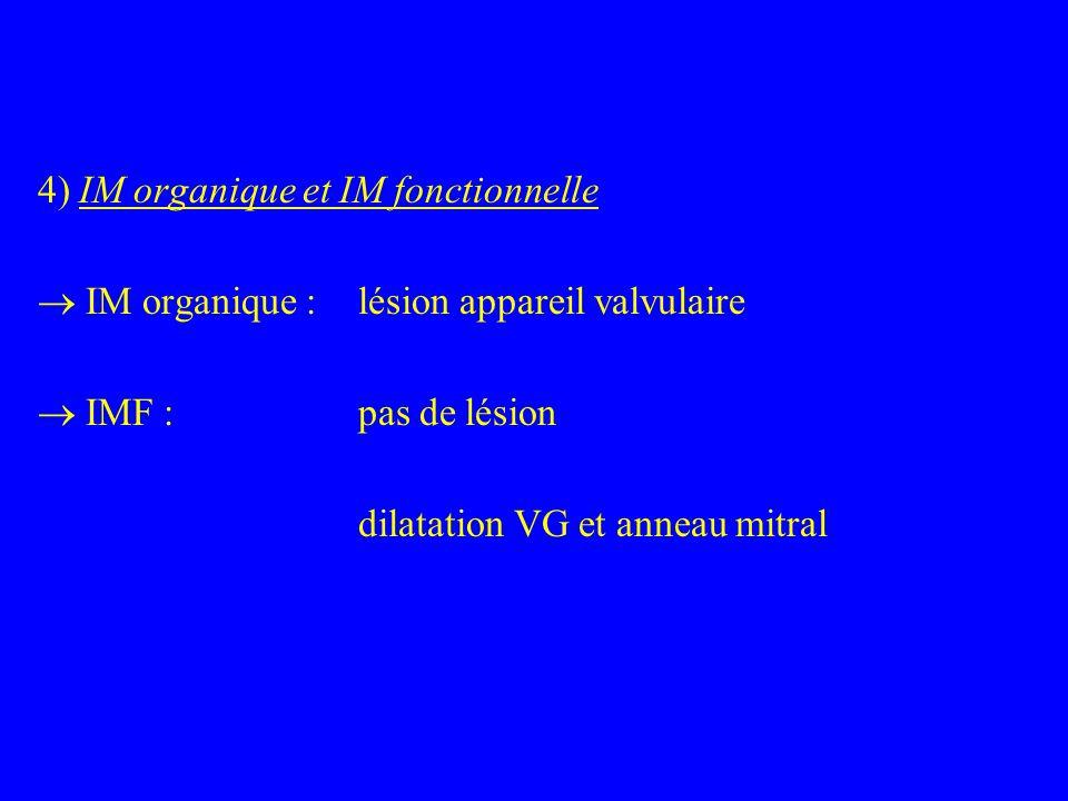 4) IM organique et IM fonctionnelle  IM organique : lésion appareil valvulaire  IMF : pas de lésion dilatation VG et anneau mitral