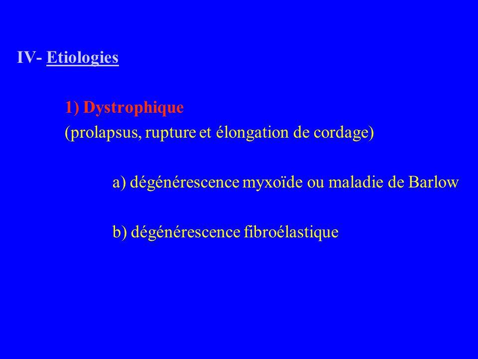 IV- Etiologies 1) Dystrophique (prolapsus, rupture et élongation de cordage) a) dégénérescence myxoïde ou maladie de Barlow b) dégénérescence fibroélastique
