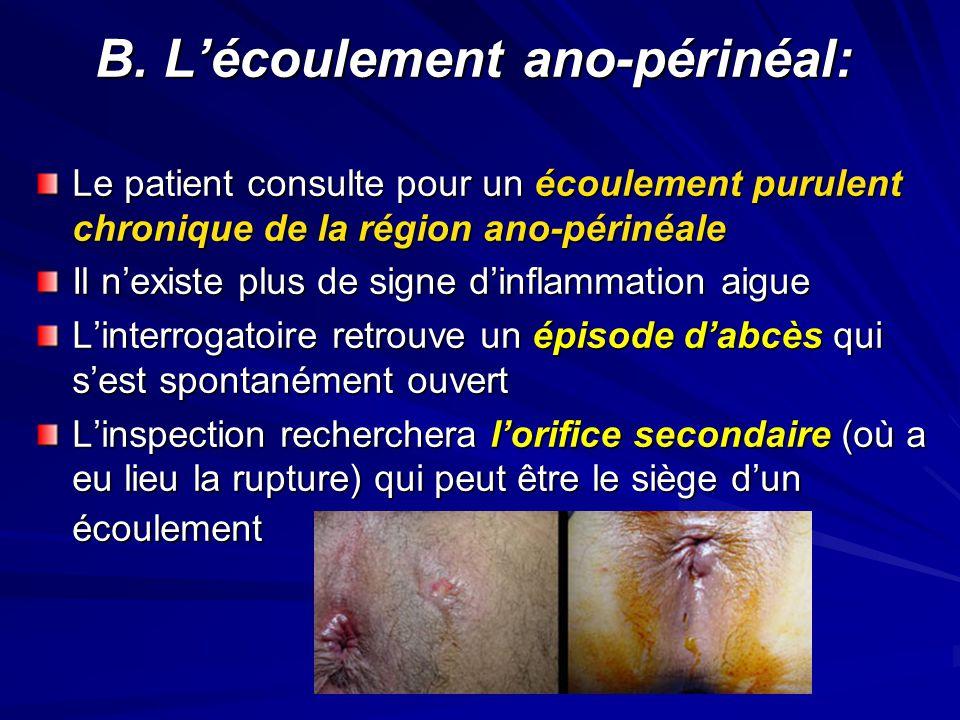 B. L'écoulement ano-périnéal: B. L'écoulement ano-périnéal: Le patient consulte pour un écoulement purulent chronique de la région ano-périnéale Il n'