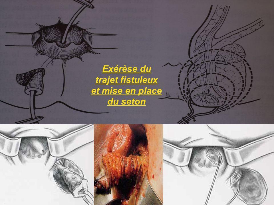 Exérèse du trajet fistuleux et mise en place du seton