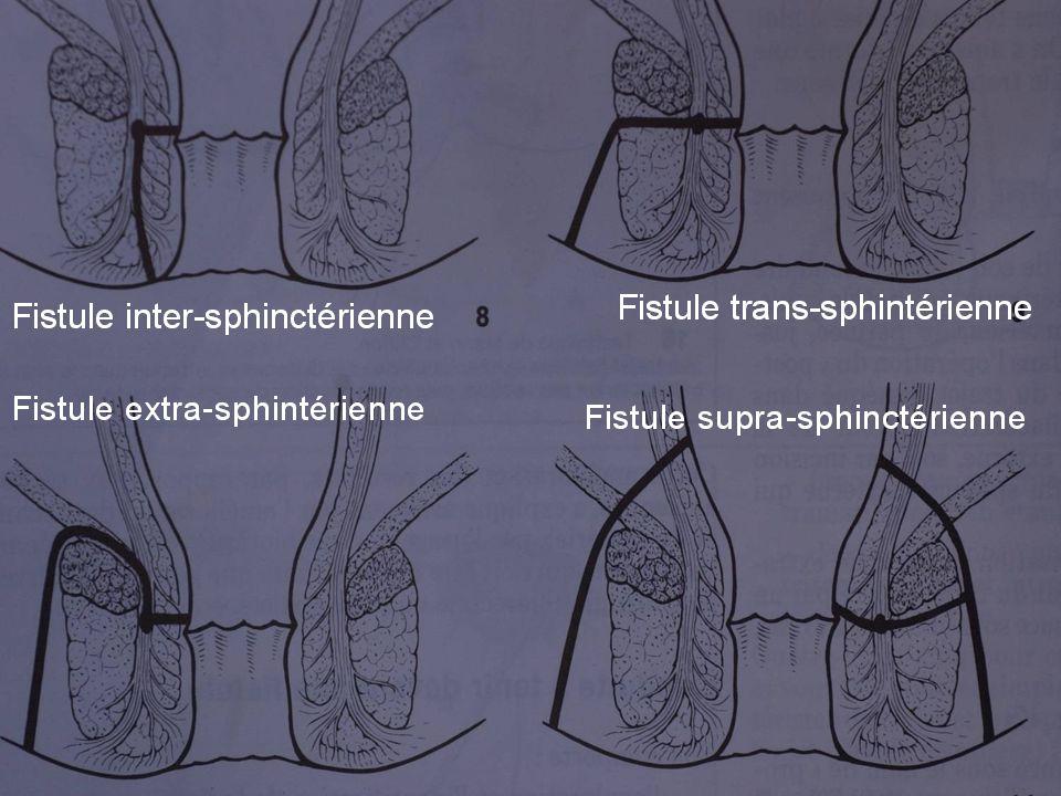 Localisations du CROHN et de ses fistules
