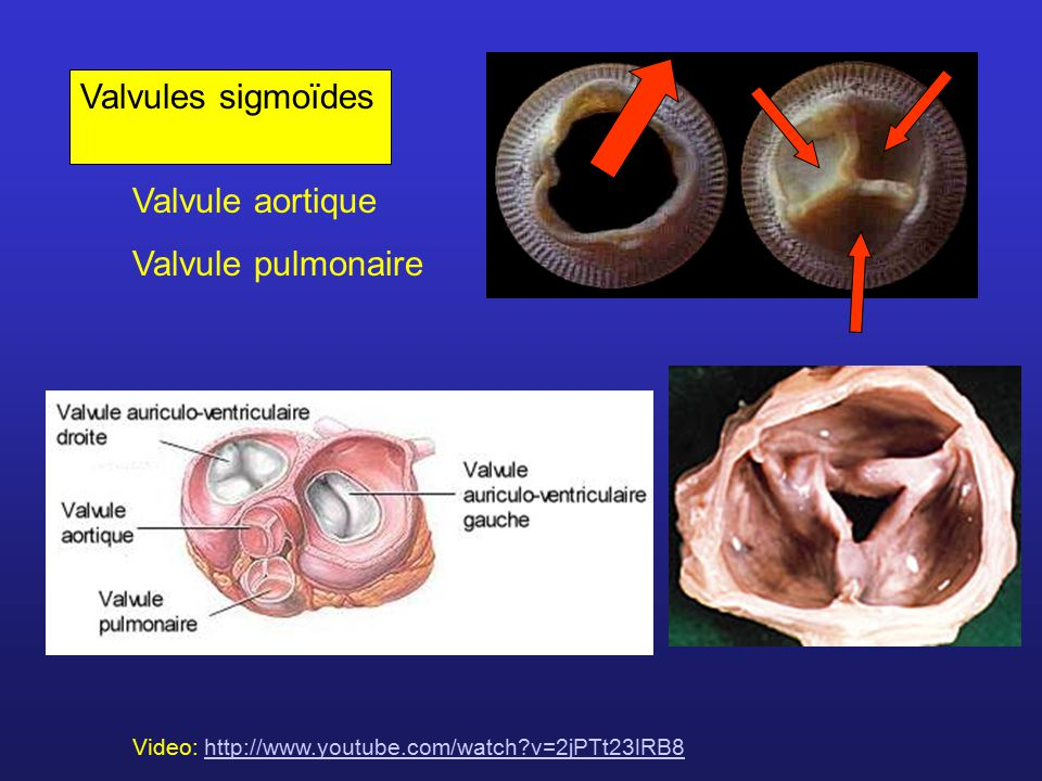 Valvules sigmoïdes Valvule aortique Valvule pulmonaire Video: http://www.youtube.com/watch?v=2jPTt23lRB8http://www.youtube.com/watch?v=2jPTt23lRB8