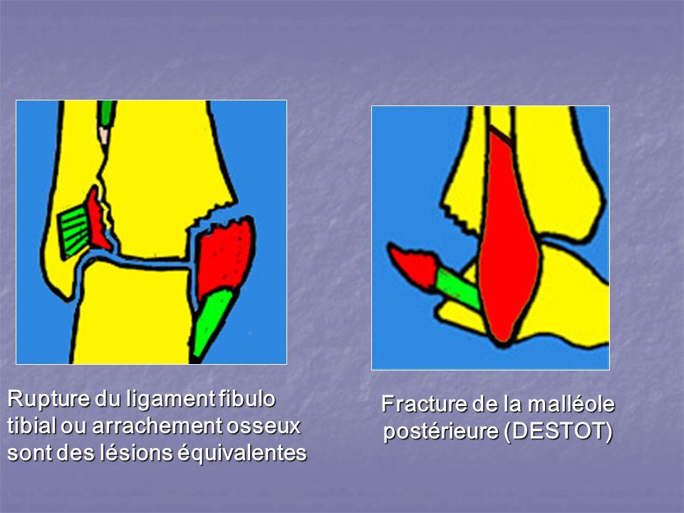 Rupture du ligament fibulo tibial ou arrachement osseux sont des lésions équivalentes Fracture de la malléole postérieure (DESTOT)