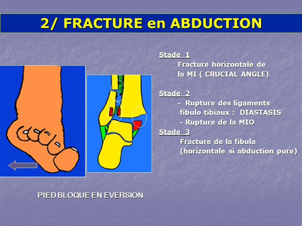 Stade 1 Fracture horizontale de Fracture horizontale de la MI ( CRUCIAL ANGLE) la MI ( CRUCIAL ANGLE) Stade 2 - Rupture des ligaments - Rupture des ligaments fibulo tibiaux : DIASTASIS fibulo tibiaux : DIASTASIS - Rupture de la MIO - Rupture de la MIO Stade 3 Fracture de la fibula Fracture de la fibula (horizontale si abduction pure) (horizontale si abduction pure) 2/ FRACTURE en ABDUCTION PIED BLOQUE EN EVERSION
