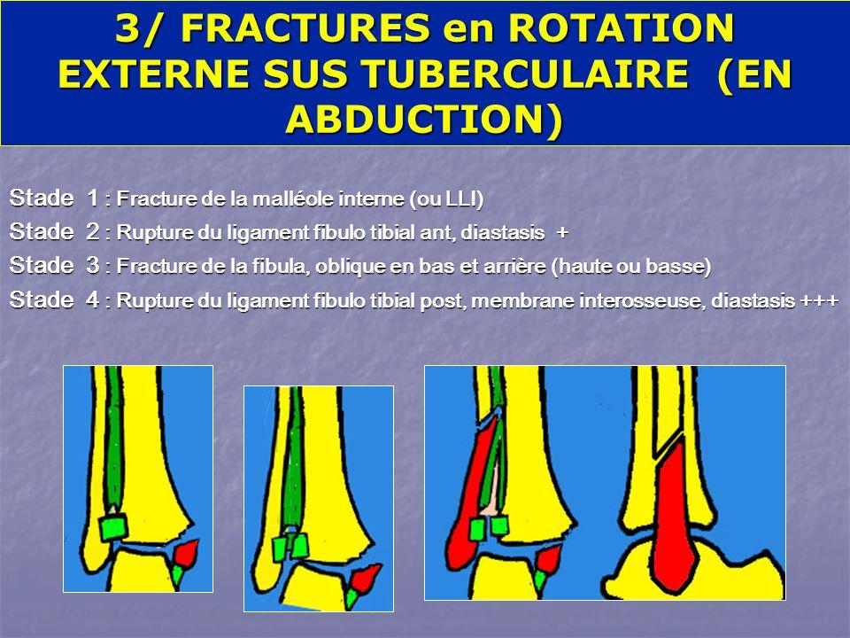 Stade 1 : Fracture de la malléole interne (ou LLI) Stade 2 : Rupture du ligament fibulo tibial ant, diastasis + Stade 3 : Fracture de la fibula, oblique en bas et arrière (haute ou basse) Stade 4 : Rupture du ligament fibulo tibial post, membrane interosseuse, diastasis +++ 3/ FRACTURES en ROTATION EXTERNE SUS TUBERCULAIRE (EN ABDUCTION) Fr de DUPUYTREN