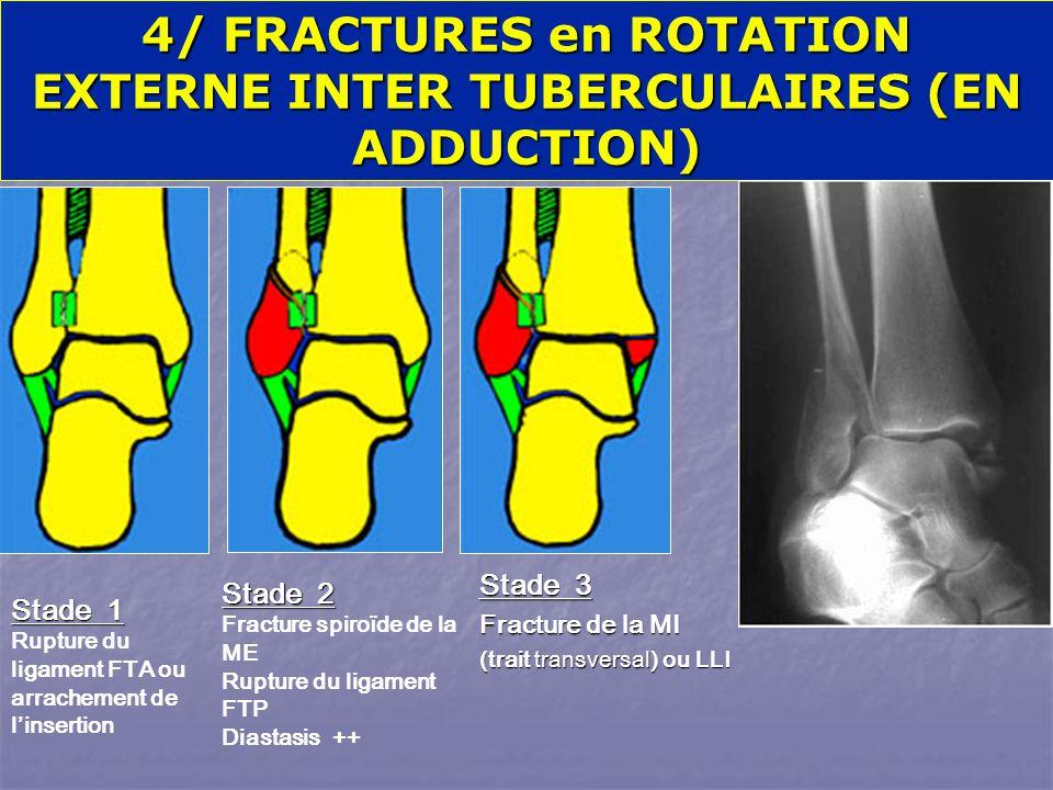 Stade 1 Rupture du ligament FTA ou arrachement de l'insertion Stade 2 Fracture spiroïde de la ME Rupture du ligament FTP Diastasis ++ Stade 3 Fracture de la MI (trait transversal) ou LLI 4/ FRACTURES en ROTATION EXTERNE INTER TUBERCULAIRES (EN ADDUCTION)