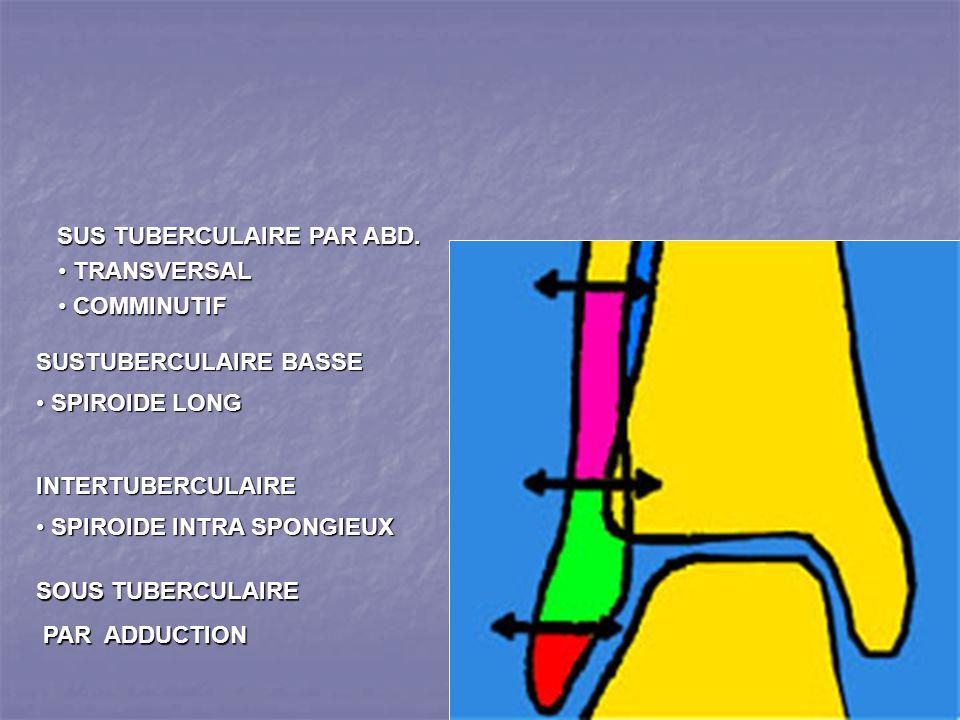 SOUS TUBERCULAIRE PAR ADDUCTION PAR ADDUCTION SUSTUBERCULAIRE BASSE SPIROIDE LONG SPIROIDE LONGINTERTUBERCULAIRE SPIROIDE INTRA SPONGIEUX SPIROIDE INTRA SPONGIEUX SUS TUBERCULAIRE PAR ABD.