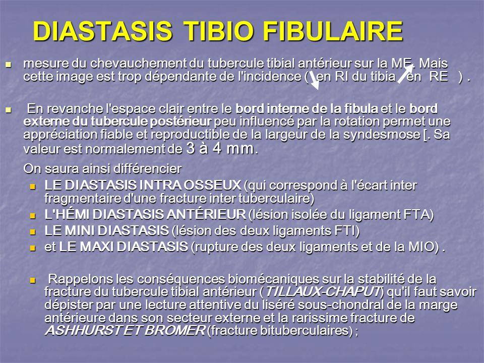 DIASTASIS TIBIO FIBULAIRE mesure du chevauchement du tubercule tibial antérieur sur la ME.