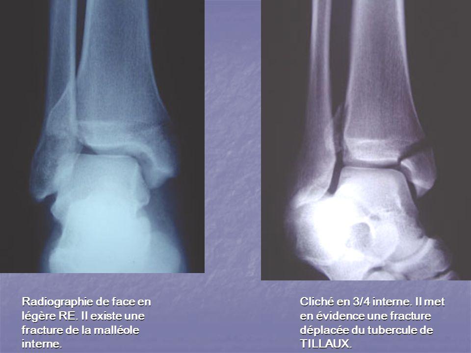 Radiographie de face en légère RE.Il existe une fracture de la malléole interne.