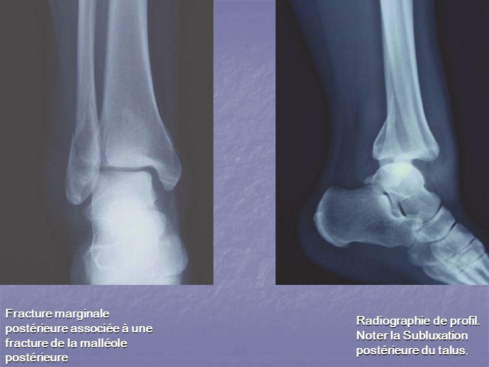 Radiographie de profil.Noter la Subluxation postérieure du talus Radiographie de profil.