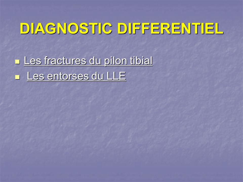 DIAGNOSTIC DIFFERENTIEL Les fractures du pilon tibial Les fractures du pilon tibial Les entorses du LLE Les entorses du LLE