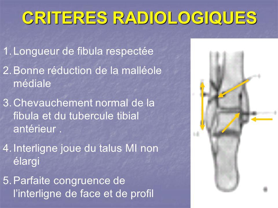 CRITERES RADIOLOGIQUES 1.Longueur de fibula respectée 2.Bonne réduction de la malléole médiale 3.Chevauchement normal de la fibula et du tubercule tibial antérieur.