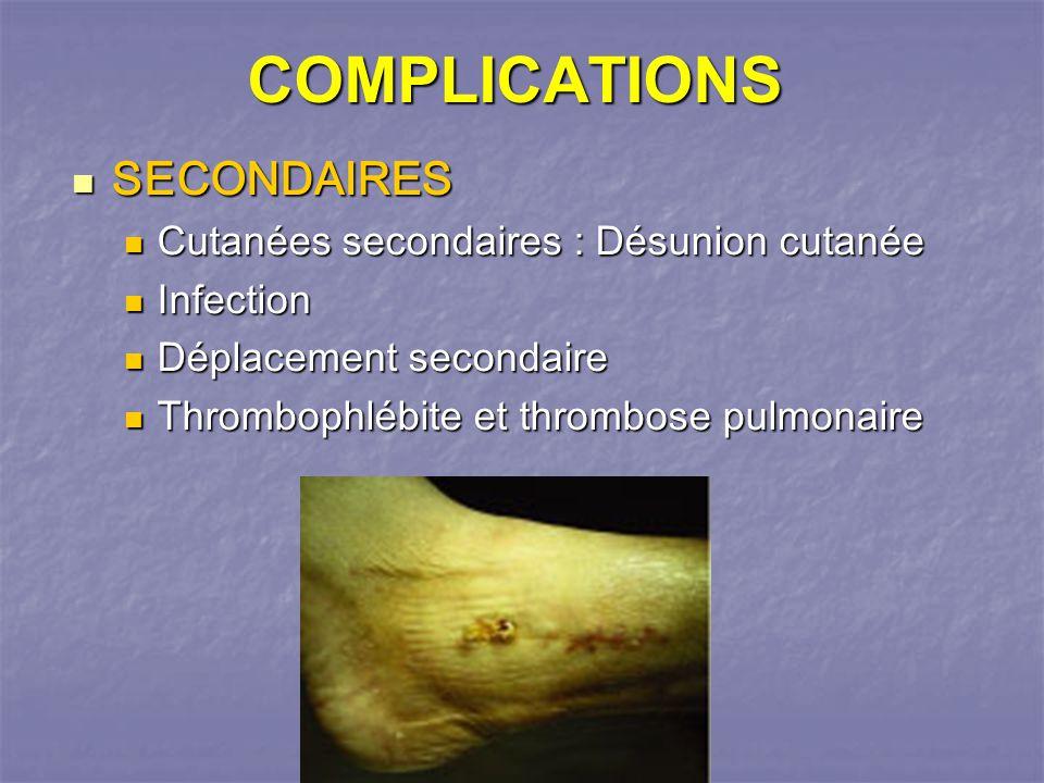COMPLICATIONS SECONDAIRES SECONDAIRES Cutanées secondaires : Désunion cutanée Cutanées secondaires : Désunion cutanée Infection Infection Déplacement secondaire Déplacement secondaire Thrombophlébite et thrombose pulmonaire Thrombophlébite et thrombose pulmonaire