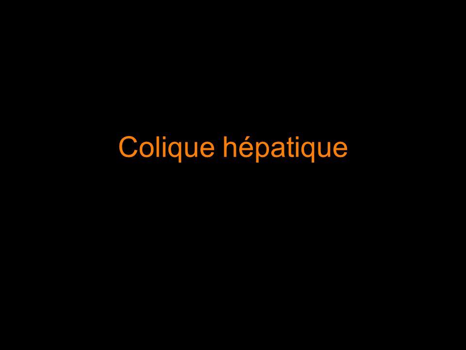 Colique hépatique