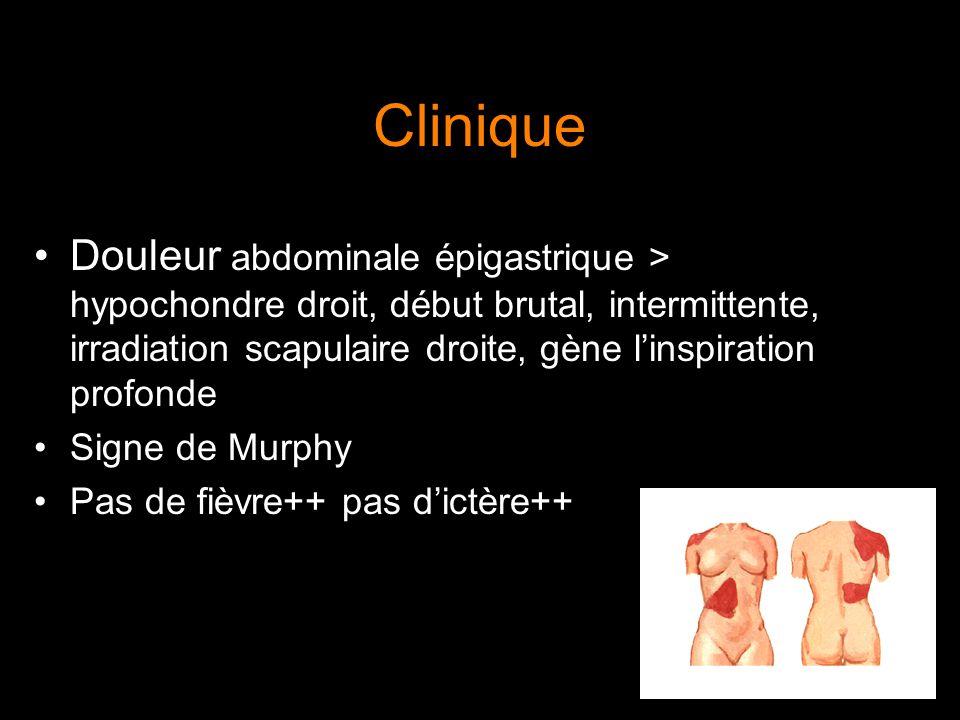 Clinique Douleur abdominale épigastrique > hypochondre droit, début brutal, intermittente, irradiation scapulaire droite, gène l'inspiration profonde