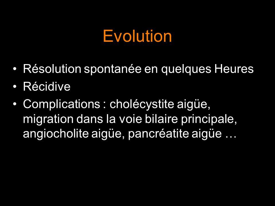 Evolution Résolution spontanée en quelques Heures Récidive Complications : cholécystite aigüe, migration dans la voie bilaire principale, angiocholite
