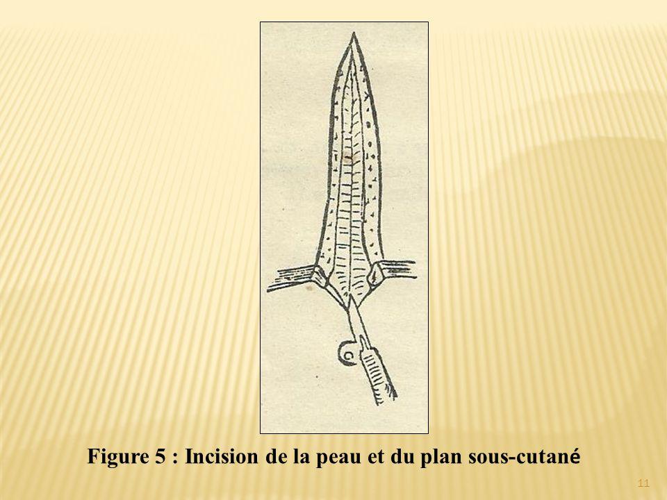 Figure 5 : Incision de la peau et du plan sous-cutan é 11