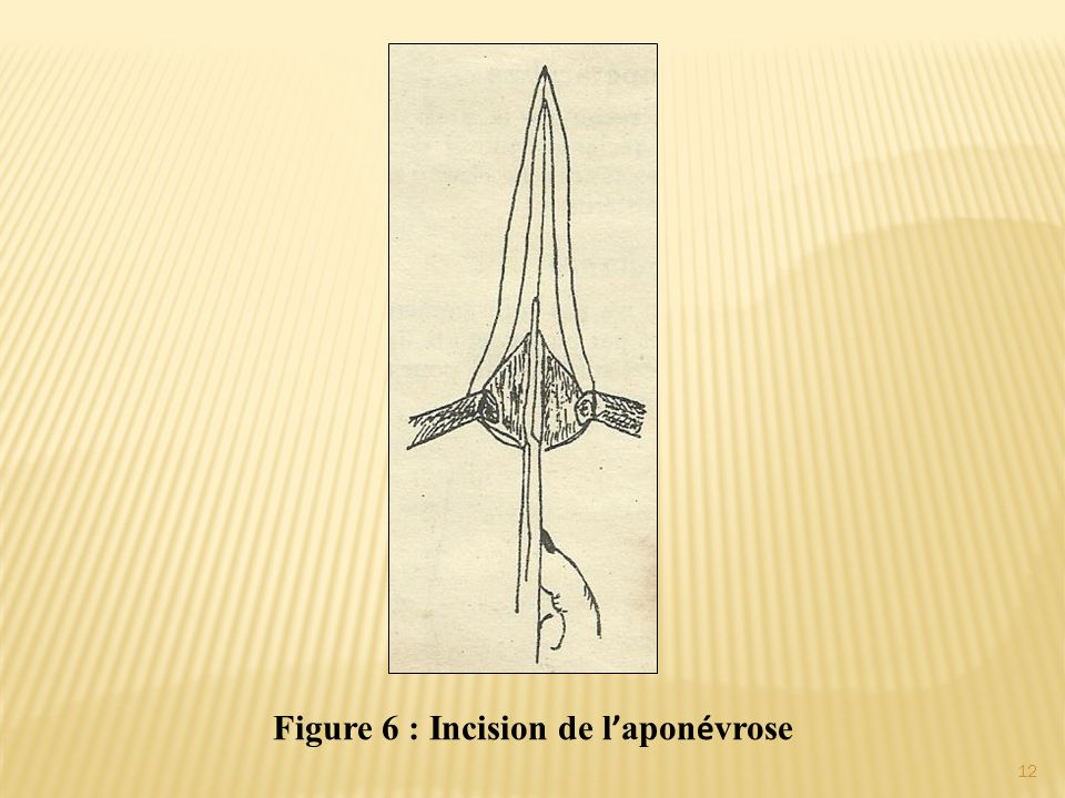 Figure 6 : Incision de l ' apon é vrose 12