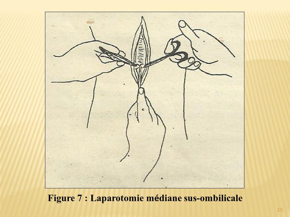 Figure 7 : Laparotomie m é diane sus-ombilicale 13