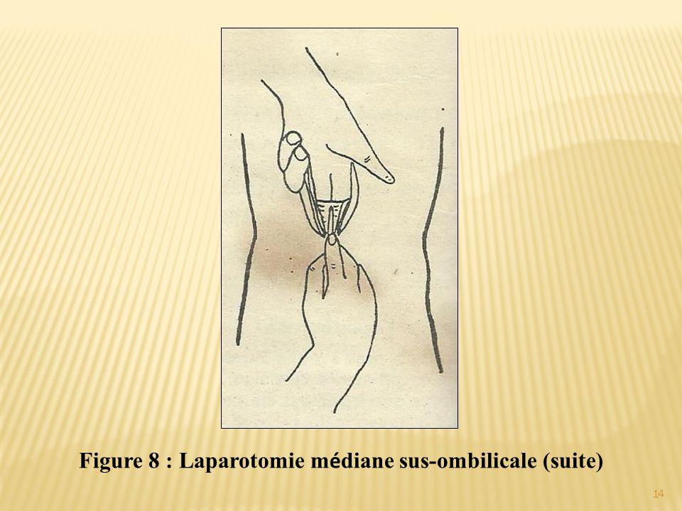 Figure 8 : Laparotomie m é diane sus-ombilicale (suite) 14