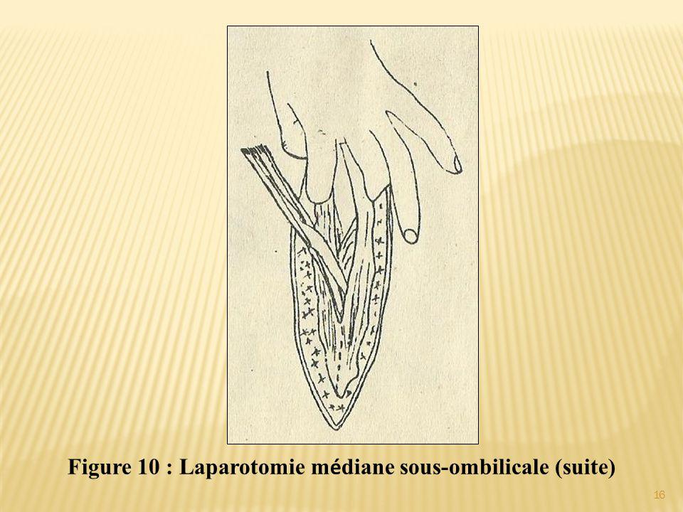 Figure 10 : Laparotomie m é diane sous-ombilicale (suite) 16