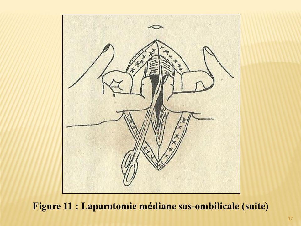Figure 11 : Laparotomie m é diane sus-ombilicale (suite) 17