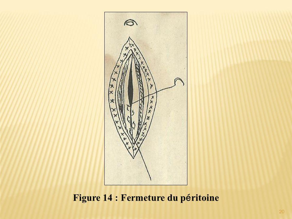 Figure 14 : Fermeture du p é ritoine 20
