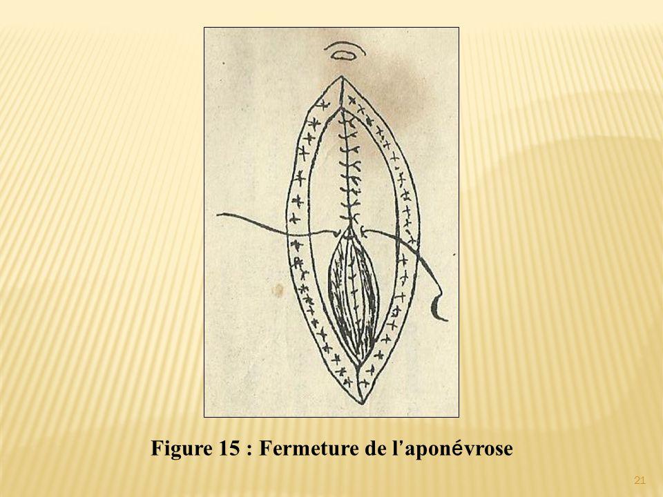 Figure 15 : Fermeture de l ' apon é vrose 21