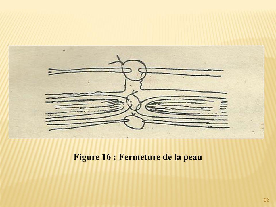 Figure 16 : Fermeture de la peau 22