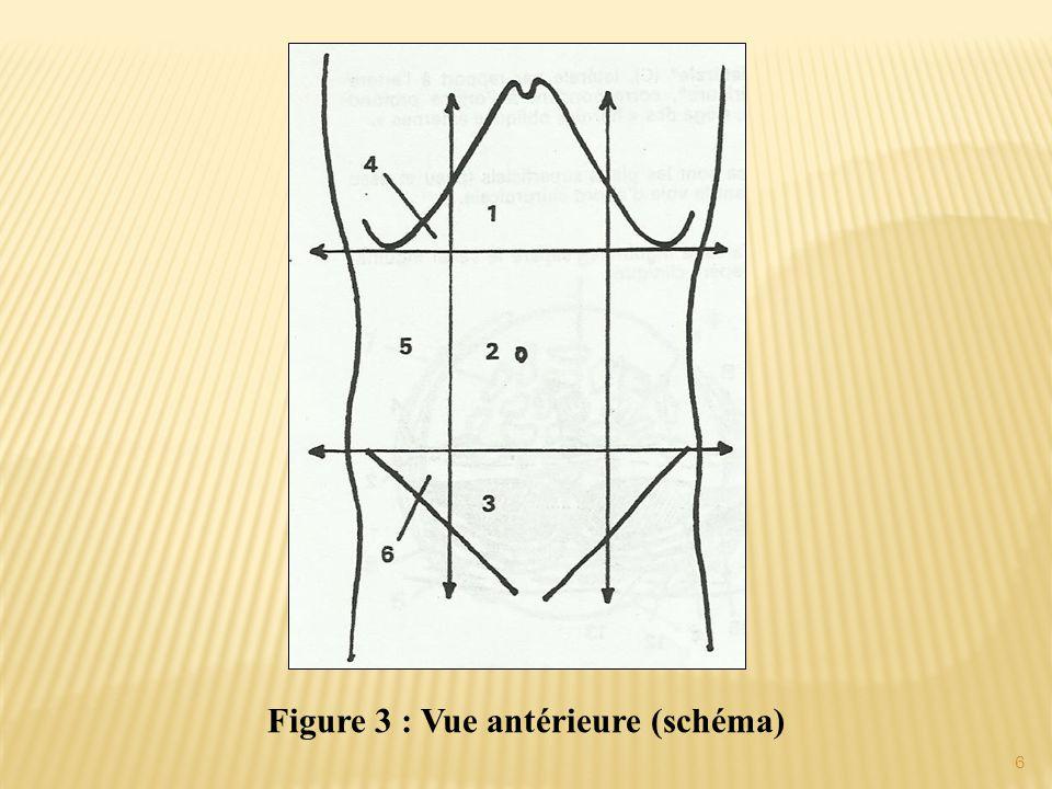 Figure 3 : Vue antérieure (schéma) 6