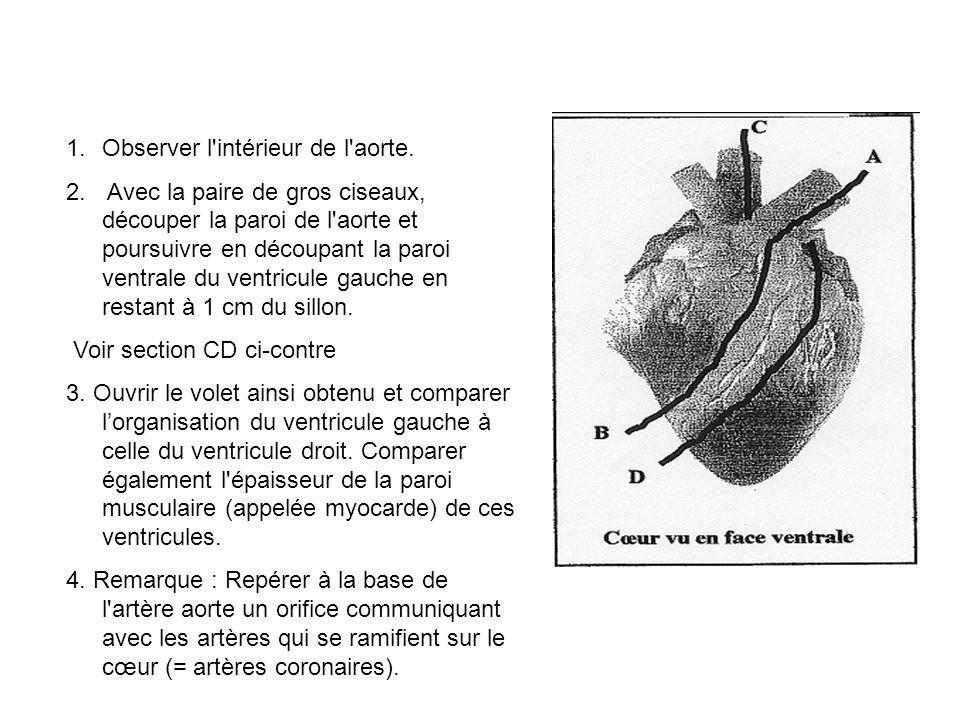 1.Observer l intérieur de l aorte.2.