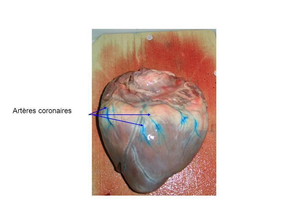 Artères coronaires