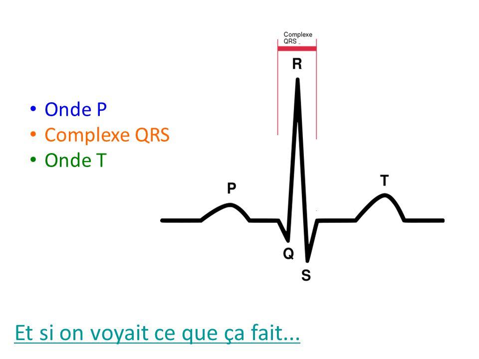 Et si on voyait ce que ça fait... Onde P Complexe QRS Onde T