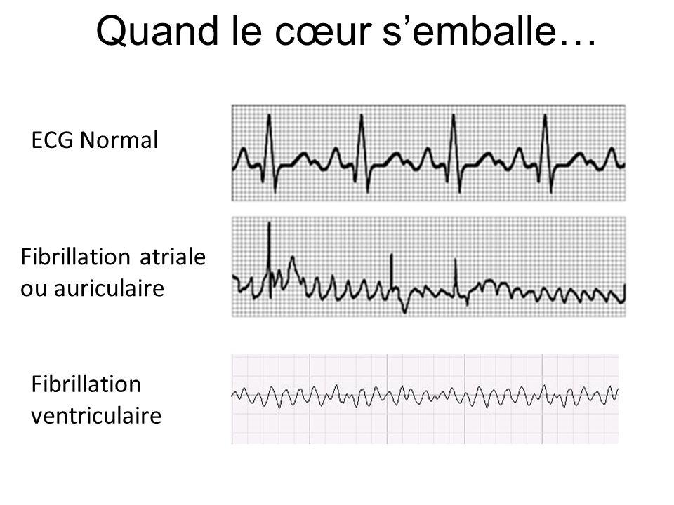 Quand le cœur s'emballe… ECG Normal Fibrillation atriale ou auriculaire Fibrillation ventriculaire
