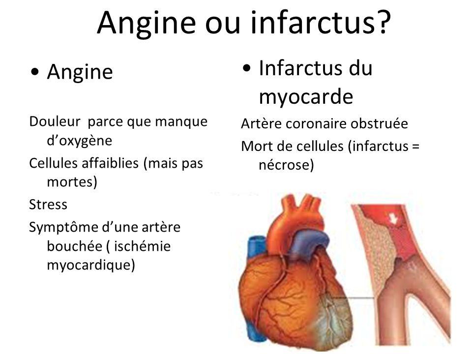 Angine ou infarctus.