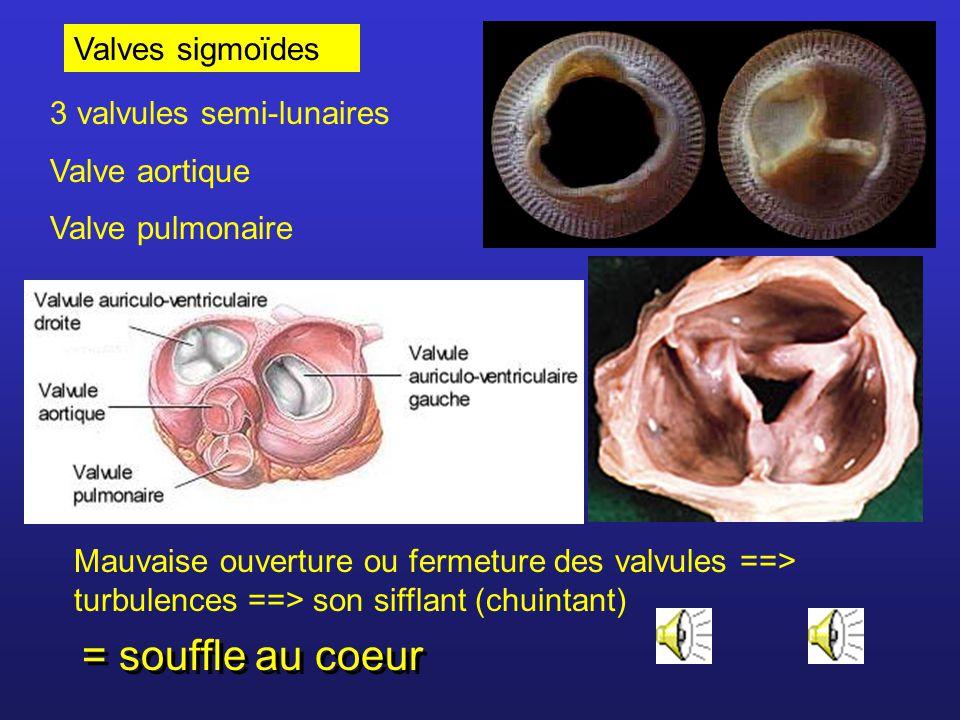 Valves sigmoïdes 3 valvules semi-lunaires Valve aortique Valve pulmonaire Mauvaise ouverture ou fermeture des valvules ==> turbulences ==> son sifflant (chuintant) = souffle au coeur