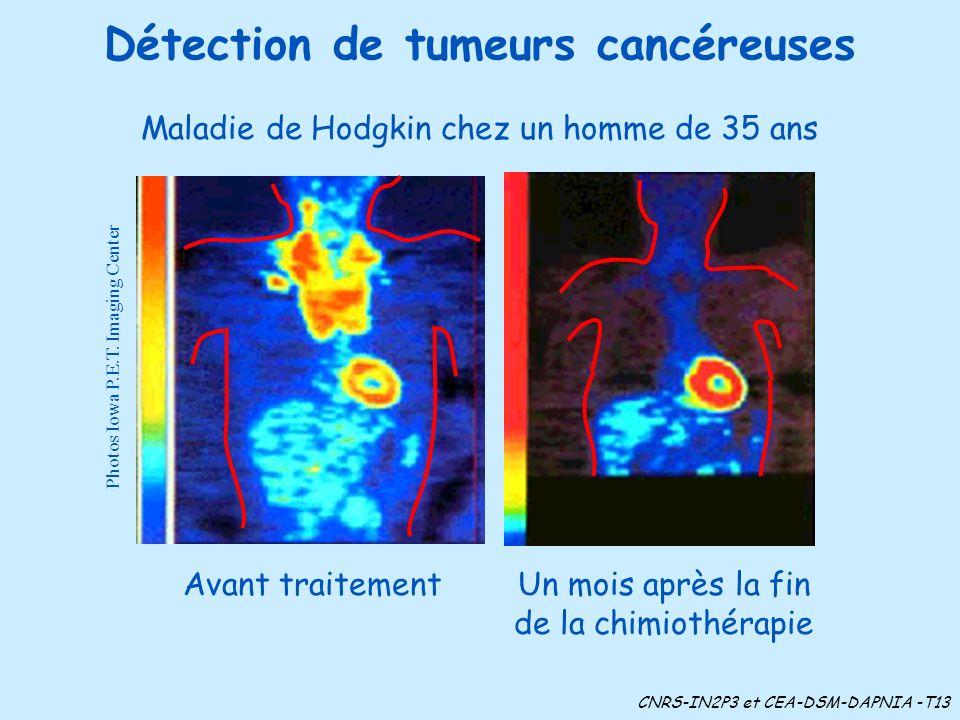 Détection de tumeurs cancéreuses Photos Iowa P.E.T. Imaging Center Avant traitement Maladie de Hodgkin chez un homme de 35 ans Un mois après la fin de