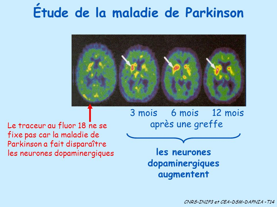 Étude de la maladie de Parkinson Le traceur au fluor 18 ne se fixe pas car la maladie de Parkinson a fait disparaître les neurones dopaminergiques les neurones dopaminergiques augmentent 3 mois 6 mois 12 mois après une greffe CNRS-IN2P3 et CEA-DSM-DAPNIA -T14