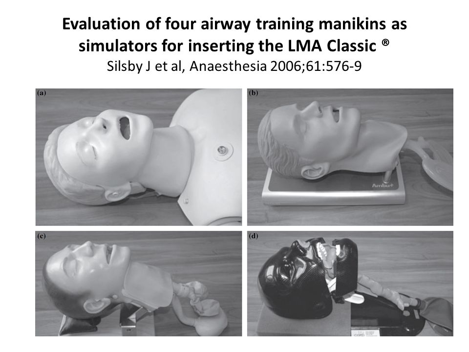 Evaluation of four airway training manikins as simulators for inserting the LMA Classic ® Silsby J et al, Anaesthesia 2006;61:576-9