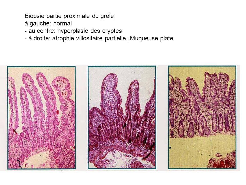 Biopsie partie proximale du grêle à gauche: normal - au centre: hyperplasie des cryptes - à droite: atrophie villositaire partielle ;Muqueuse plate
