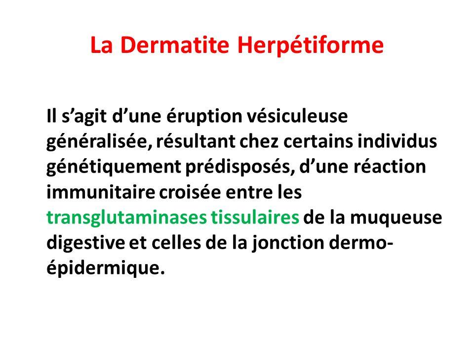 La Dermatite Herpétiforme Il sagit dune éruption vésiculeuse généralisée, résultant chez certains individus génétiquement prédisposés, dune réaction immunitaire croisée entre les transglutaminases tissulaires de la muqueuse digestive et celles de la jonction dermo- épidermique.
