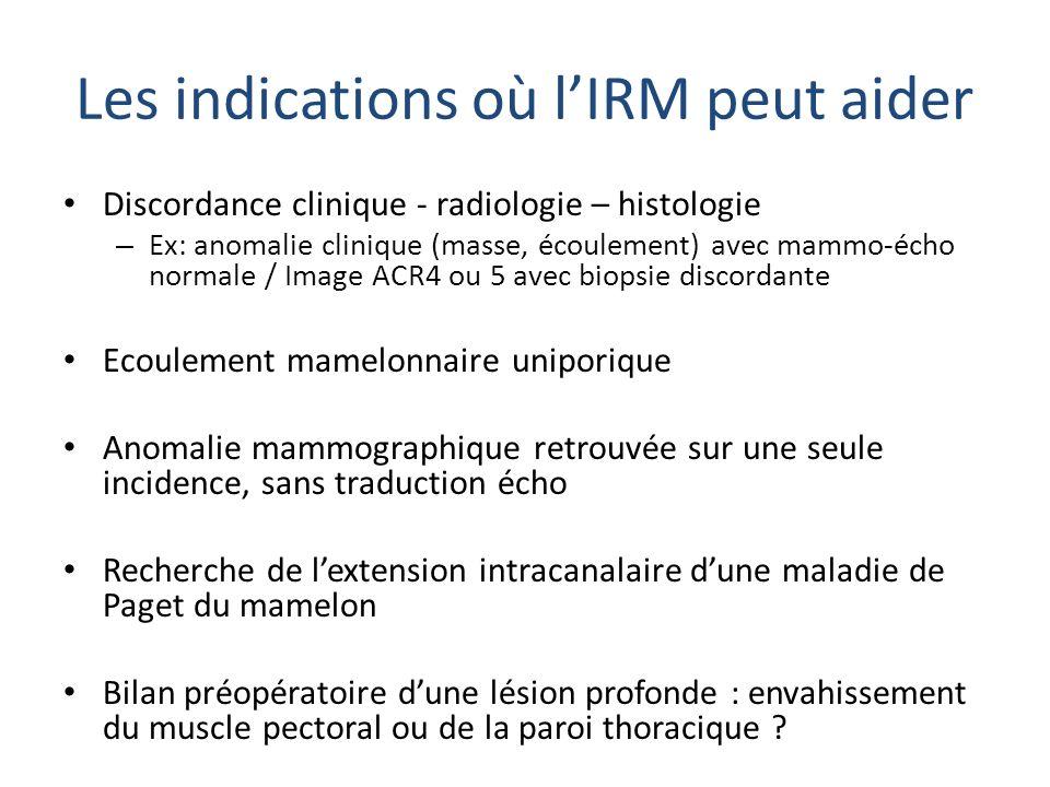 Les indications où lIRM peut aider Discordance clinique - radiologie – histologie – Ex: anomalie clinique (masse, écoulement) avec mammo-écho normale