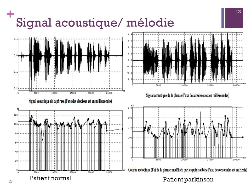 + Patient normal Patient parkinson Signal acoustique/ mélodie 12
