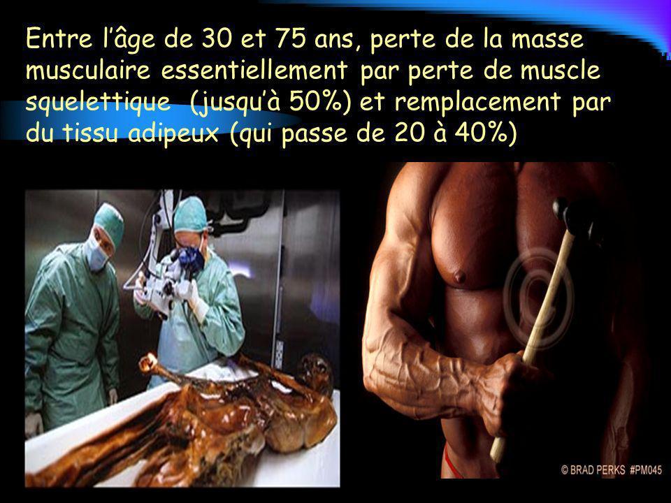 Entre lâge de 30 et 75 ans, perte de la masse musculaire essentiellement par perte de muscle squelettique (jusquà 50%) et remplacement par du tissu ad